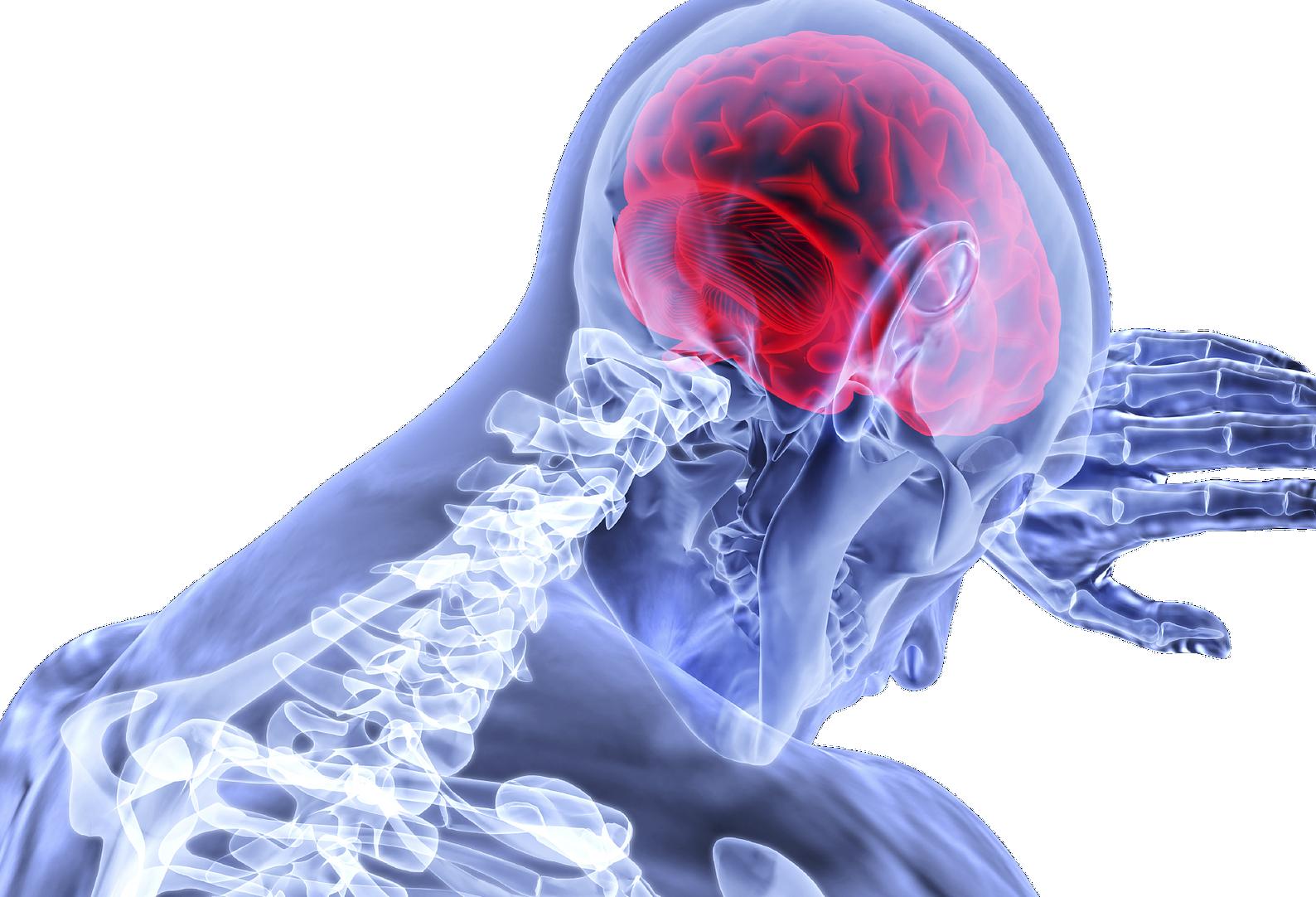 Esclerose múltipla afeta cerca de 40 mil brasileiros
